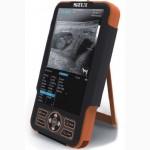 Ультразвуковой сканер CTS-800